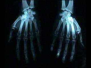 X射线检测仪
